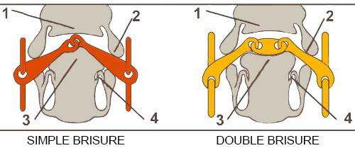 choisir le mors de votre cheval : Action d'un mors simple ou double brisure sur la bouche de votre cheval